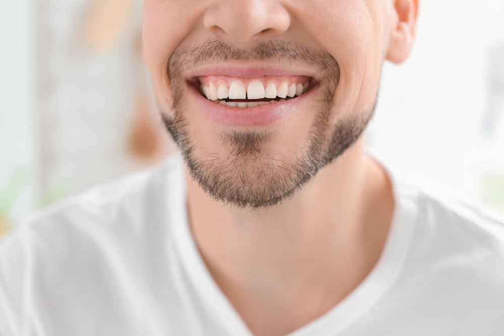 harrisonburg dentist | teeth whitening harrisonburg va